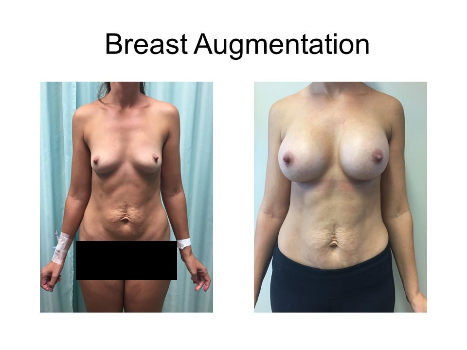 Breast Augmentation Khoury Plastic Surgery_AW