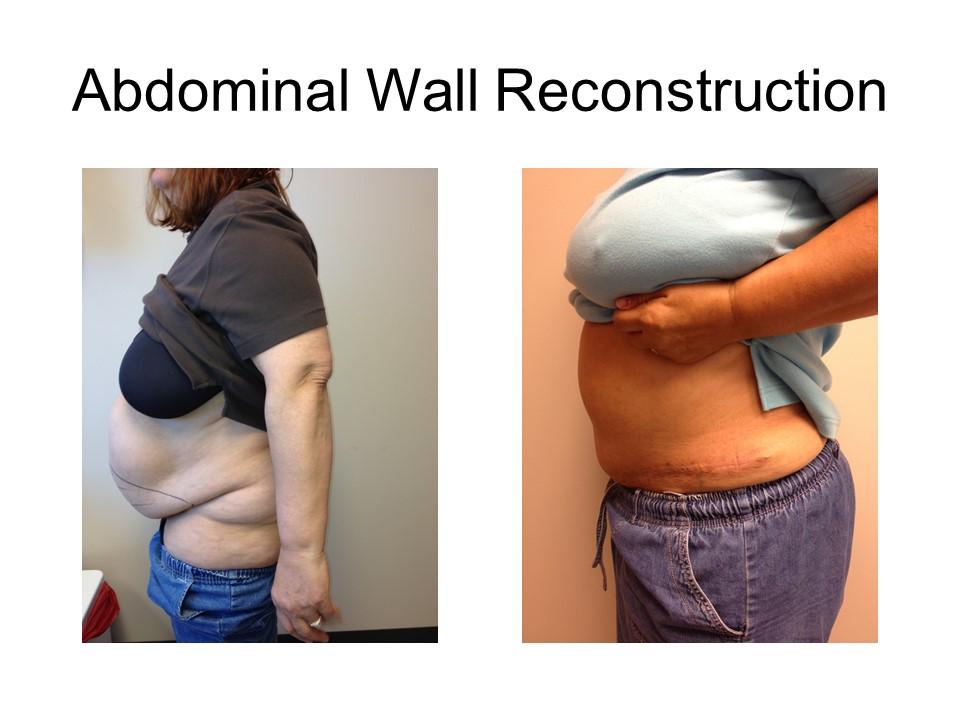 Abdominal Wall Reconstruction Khoury Plastic Surgery_DSH