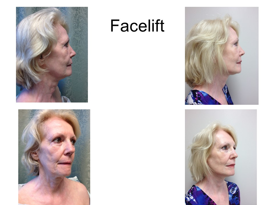 Mini Facelift Khoury Plastic Surgery_ED