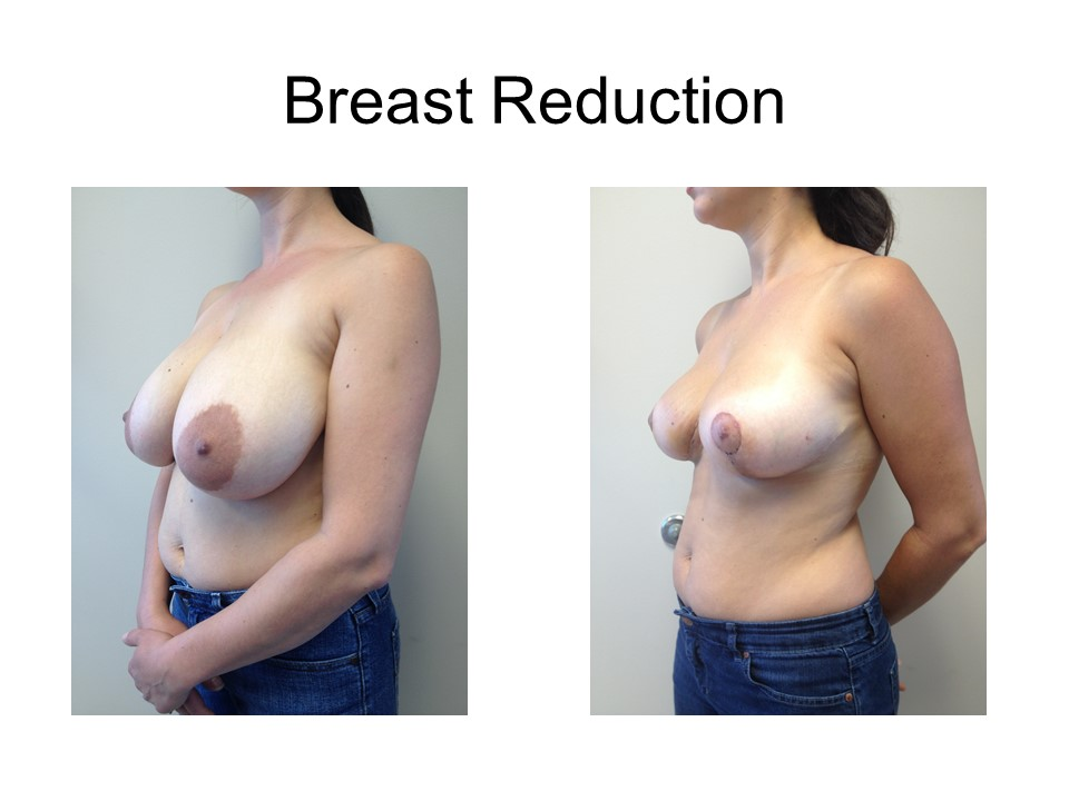 Breast Reduction Khoury Plastic Surgery_EF