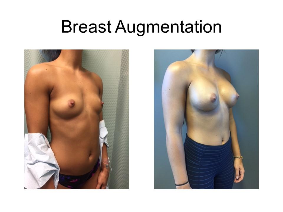 Breast Augmentation Khoury Plastic Surgery_PW