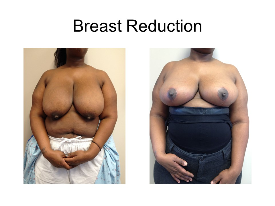 Breast Reduction Khoury Plastic Surgery_SS